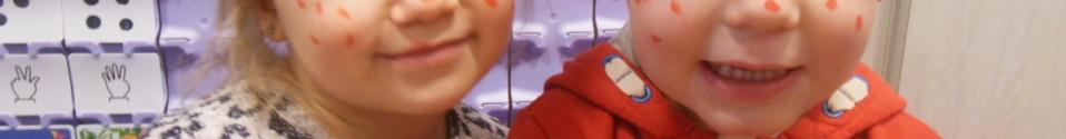 Jules heeft rode vlekjes!